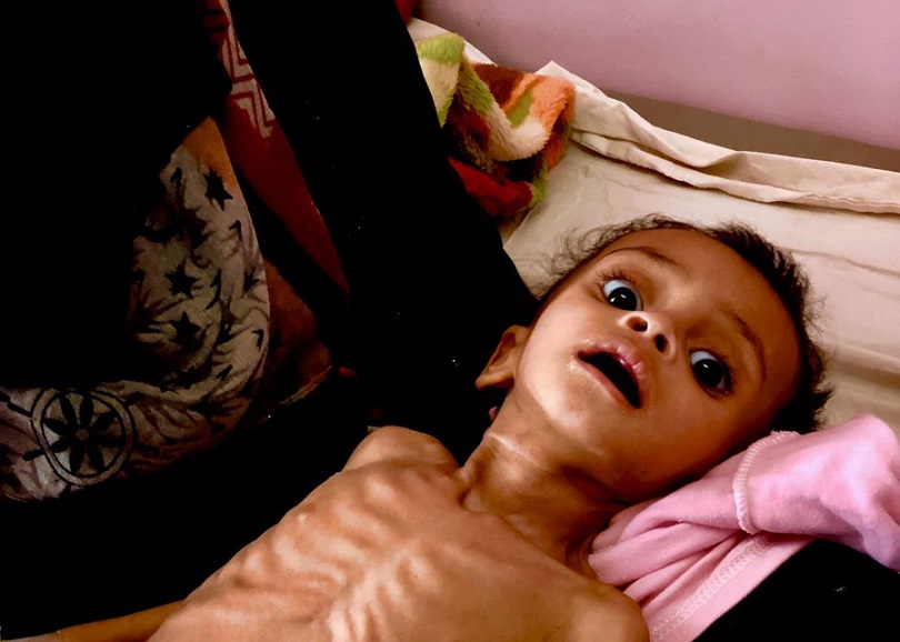 10-month-old Matea was brought to Sabaeen Hospital in Sana'a by her mother, suffering from malnutrition.