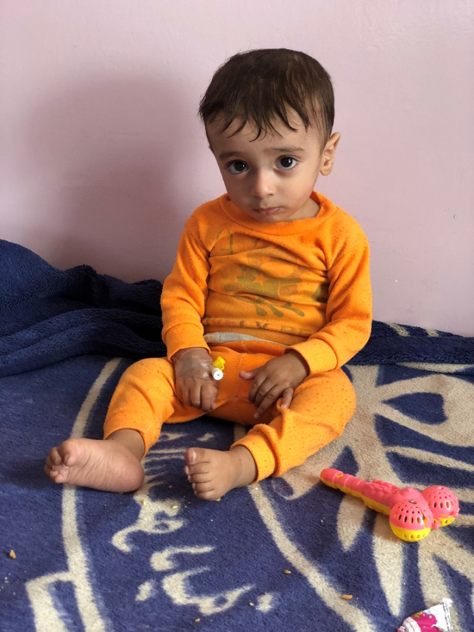 A child in the malnutrition ward of the Sabaeen Hospital in Sanaa