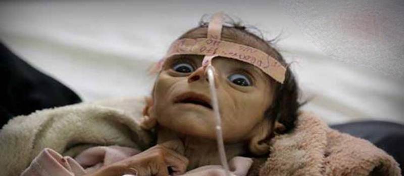 The war in Yemen has the worst humanitarian crisis in the world