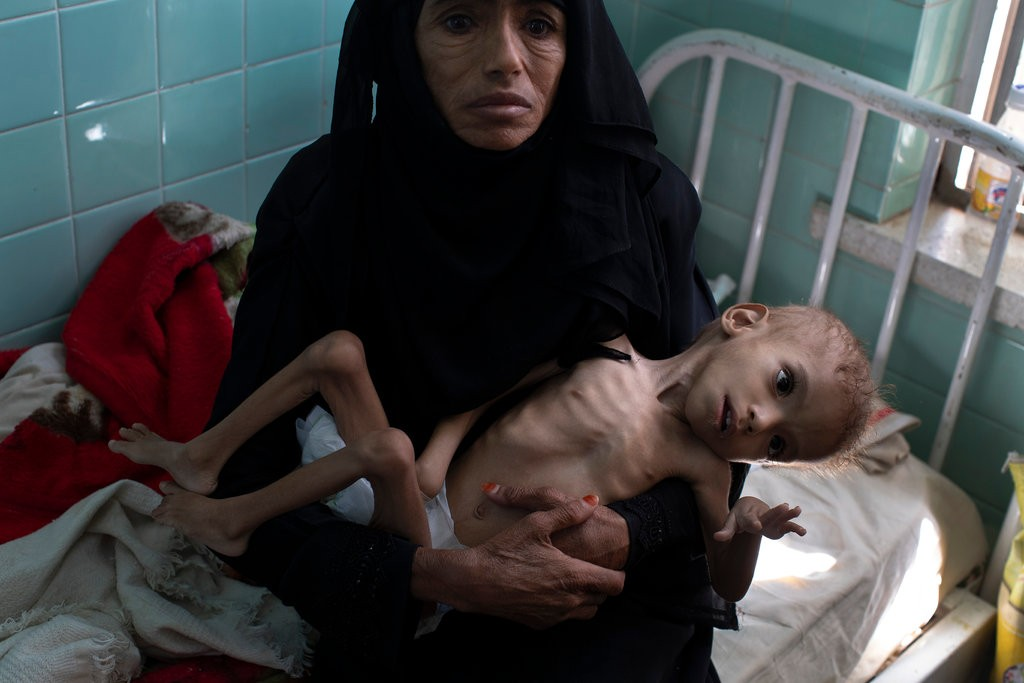 Bassam Mohammed Hassan was being treated at a hospital in Sana, Yemen, last month, for severe malnutrition and cerebral palsy.CreditCreditTyler Hicks/The New York Times