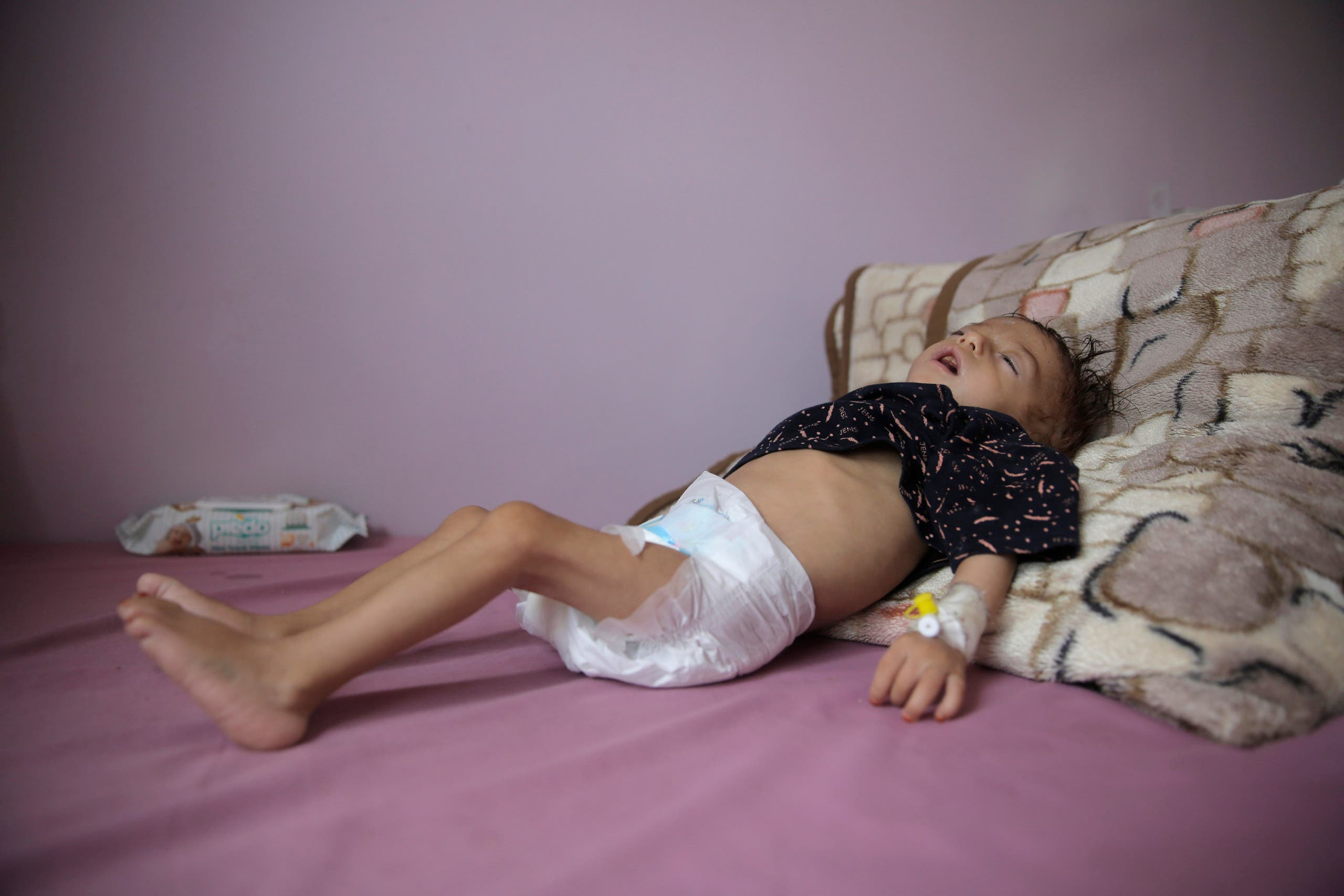 A Yemeni malnourished child at a health center