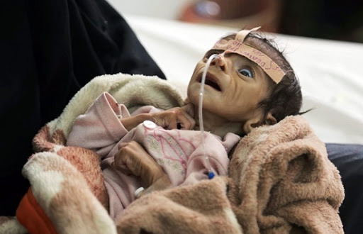 Yemeni malnourished child in time of Yemen's war