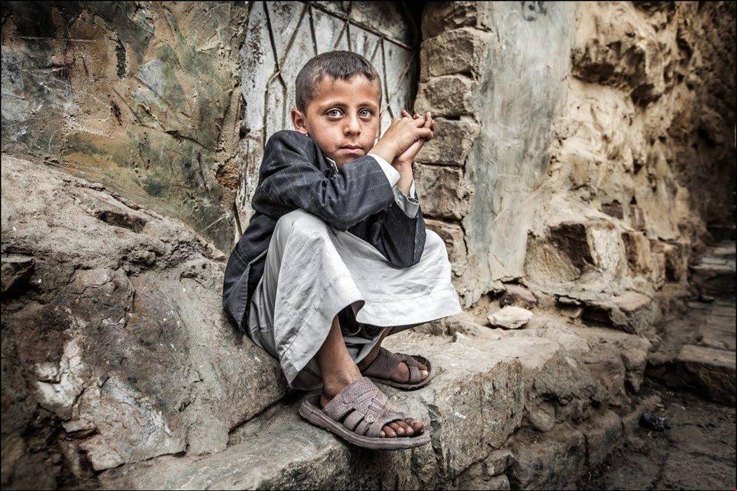 أطفال اليمن أكثر من تضرر من الحرب في اليمن