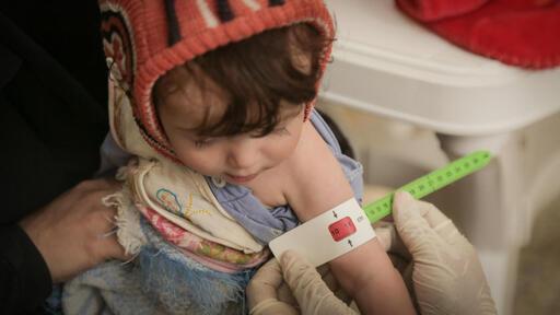 يعاني آلالف اليمنيين من سوء التغذية